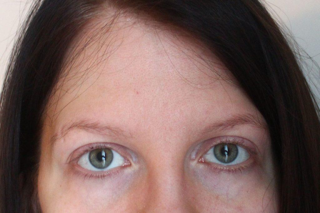 Näin sain mustat silmänaluset vaaleammiksi!
