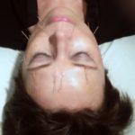 Kokeilin akupunktiota