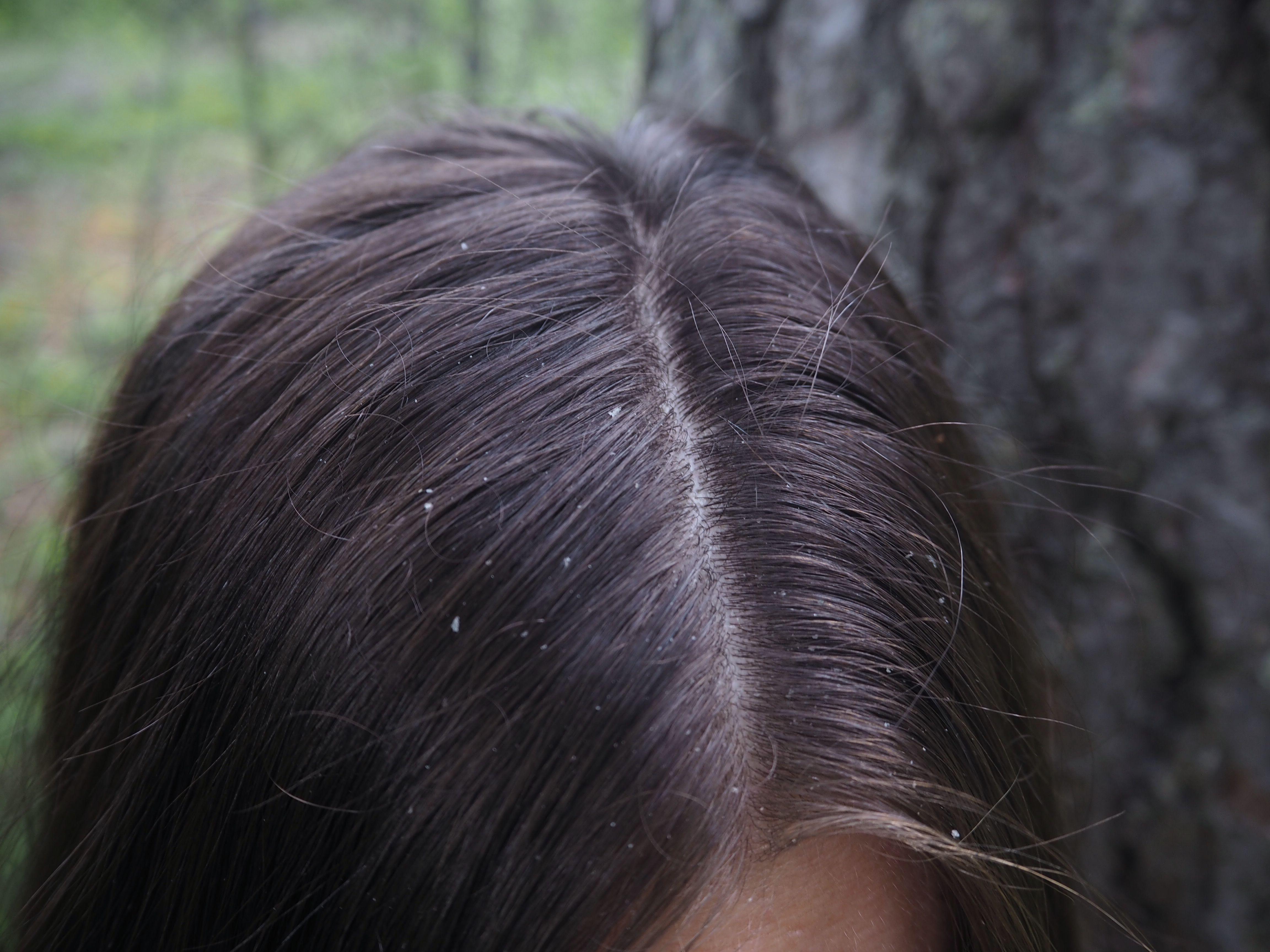 Ongelmana hiuspohja  Tehokasta apua kaikille hiuslaaduille! – Ida ... 364de6ce33