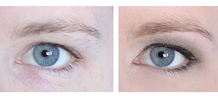 Sarah_eye_beforeafter