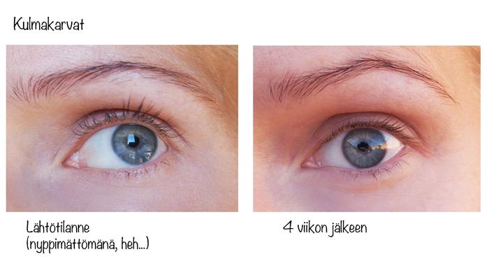 SwissClini_kulmakarvaseerumi_before_after