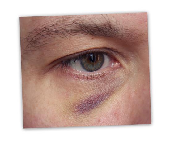 Silmä mustana - suuri peiteainetesti