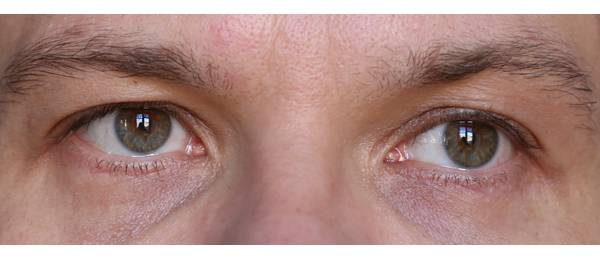 Tummat silmänaluset piiloon miehellä