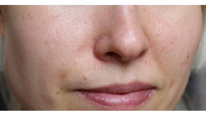 Huokoset käsittelyssa osa 2: Mádaran Detox-naamio