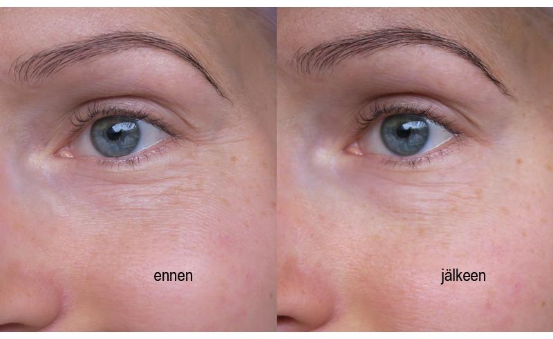 Bio Rich Anti-Wrinkle Serum before after