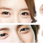 Korealainen silmäpussitrendi
