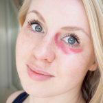 Voiko punaisella huulipunalla peittää tummat silmänaluset?
