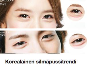 Korealainen silmäpussitrendi Ostolakossa