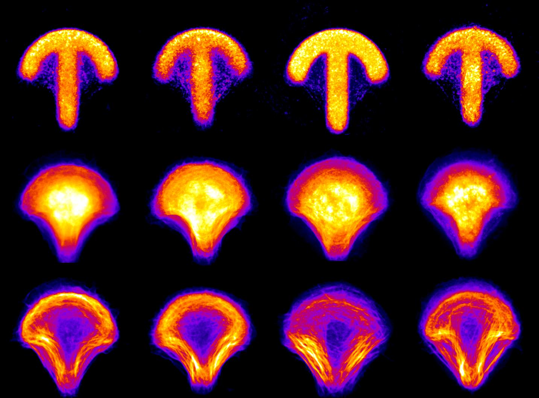 Eri proteiinien sijoittuminen syöpäsoluissa