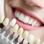 Valkaiseeko musta hammastahna hampaat?