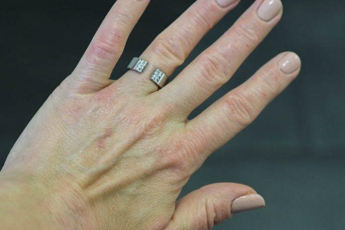Mitä lisäravinteita atooppinen iho tarvitsee?