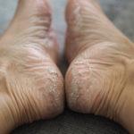Mun jalat on kamalat